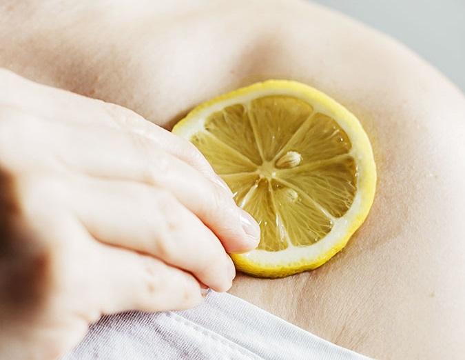 علاج قرصة الناموس بالليمون